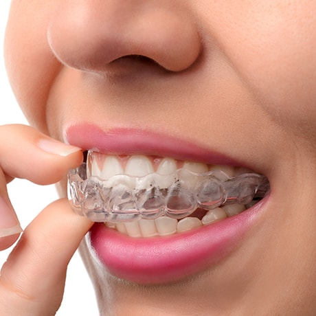 Image of a woman putting on Invisalign, the clear aligners to straighten teeth.